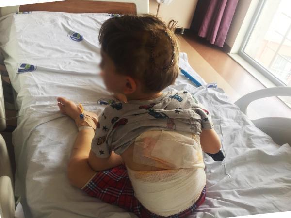 5 yaşındaki Eymen, ölümle burun buruna geldi